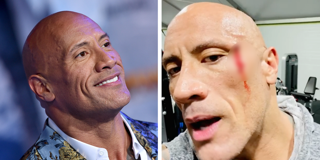 The Rock has went through a list of injuries during his WWE career